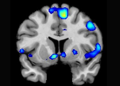 The brain became active when devoutly religious study participants reported having a spiritual experience
