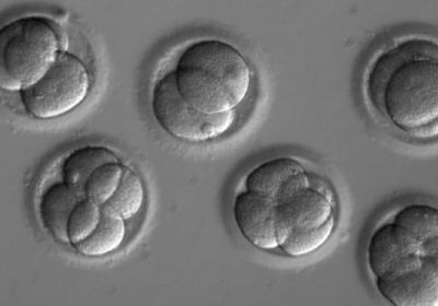 Researchers reprogrammed human cells before injecting them in the monkey embryo